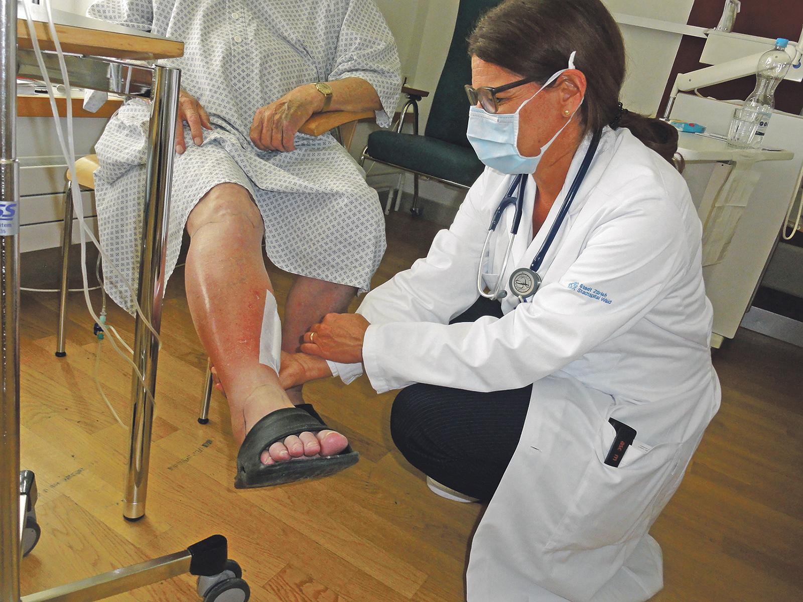 Dr. Elisabeth Weber kontrolliert, wie gut sich die Wundrose (Erysipel) eines Patienten unter der antibiotischen Therapie zurückbildet.